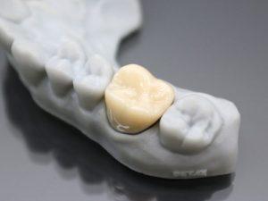 impressão 3d na odontologia